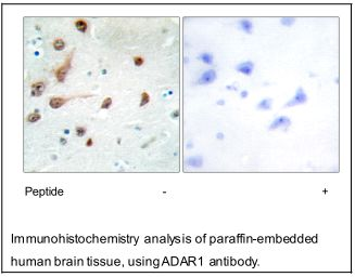 ADAR1 Antibody (OAEC02357) in Human brain cells using Immunohistochemistry