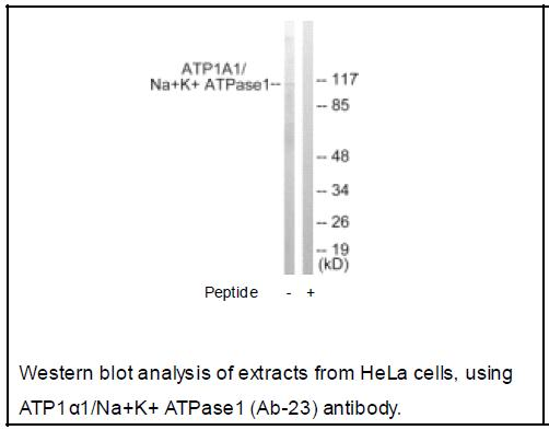ATP1α1/Na+K+ ATPase1 (Ab-23) Antibody (OAEC02406) in Human Hela cells using Western Blot