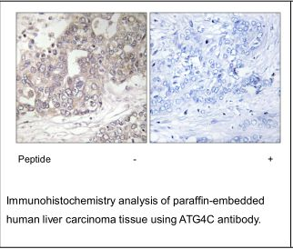 ATG4C Antibody (OAEC02511) in Human liver carcinoma cells using Immunohistochemistry