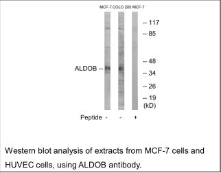 ALDOB Antibody (OAEC02553) in MCF-7 cells using Western Blot