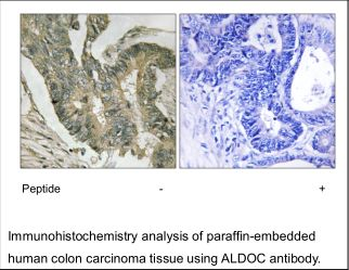ALDOC Antibody (OAEC02554) in Human colon carcinoma cells using Immunohistochemistry