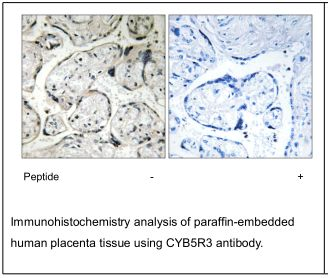 CYB5R3 Antibody (OAEC02741) in Human placenta cells using Immunohistochemistry