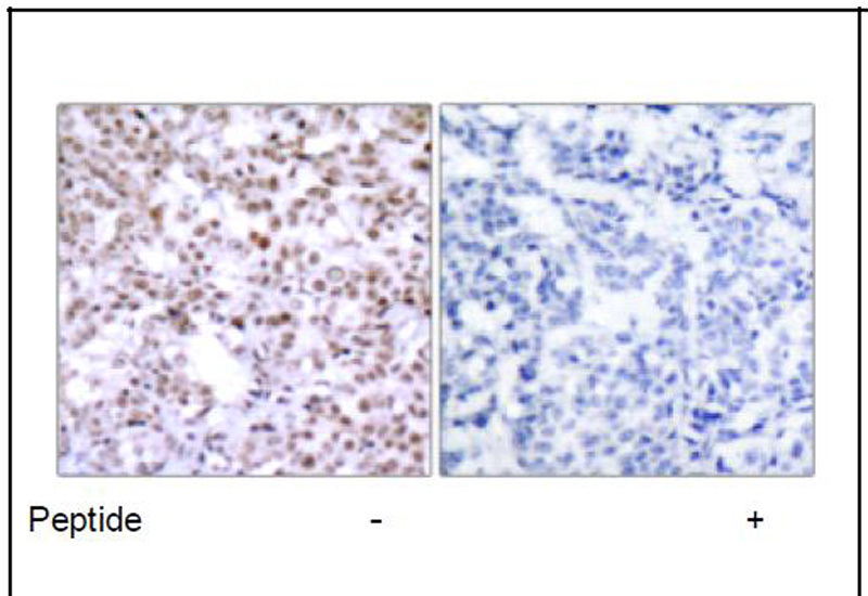 Chk2 (Ab-68) Antibody (OAEC03711) in Human breast carcinoma cells using Immunohistochemistry