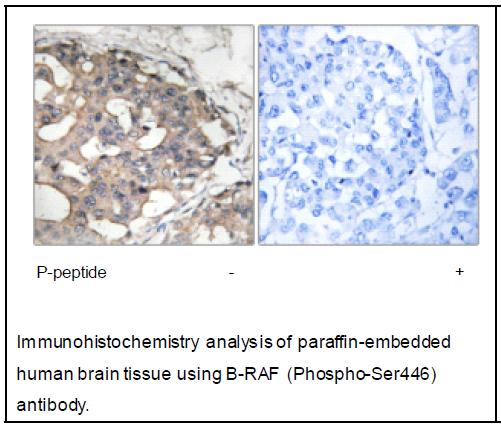 B-RAF (Phospho-Ser446) Antibody (OAEC03877) in Human brain cells using Immunohistochemistry