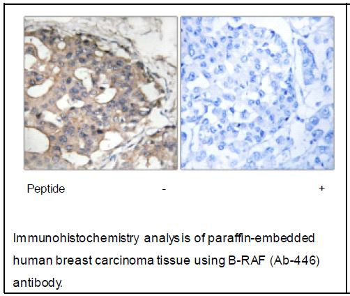 B-RAF (Ab-446) Antibody (OAEC03878) in Human breast carcinoma cells using Immunohistochemistry