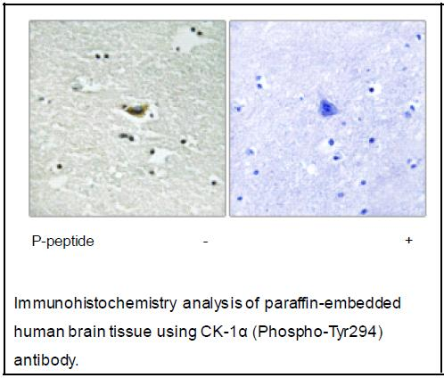 CK-1α (Phospho-Tyr294) Antibody (OAEC03880) in Human brain cells using Immunohistochemistry