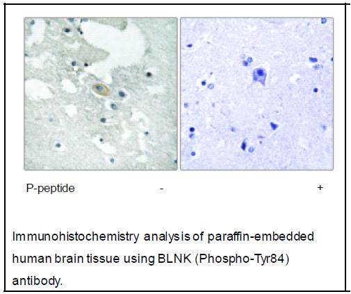 BLNK (Phospho-Tyr84) Antibody (OAEC03981) in Human brain cells using Immunohistochemistry
