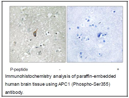 APC1 (Phospho-Ser355) Antibody (OAEC04004) in Human brain cells using Immunohistochemistry