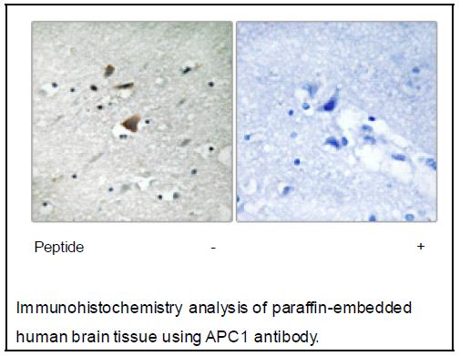 APC1 Antibody (OAEC04005) in Human brain cells using Immunohistochemistry