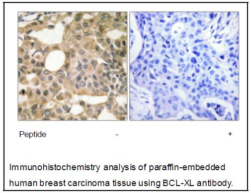BCL-XL Antibody (OAEC04007) in Human breast carcinoma cells using Immunohistochemistry