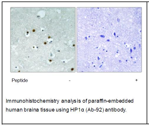 HP1α (Ab-92) Antibody (OAEC04025) in Human brain cells using Immunohistochemistry
