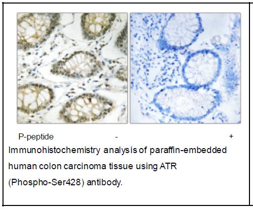 ATR (Phospho-Ser428) Antibody (OAEC04028) in Human colon carcinoma cells using Immunohistochemistry