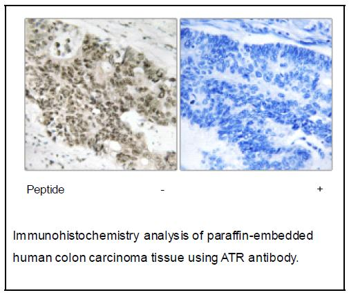 ATR Antibody (OAEC04029) in Human colon carcinoma cells using Immunohistochemistry