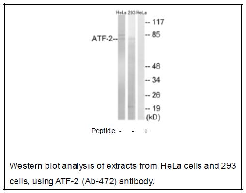ATF-2 (Ab-472) Antibody (OAEC04047) in Human Hela cells using Western Blot