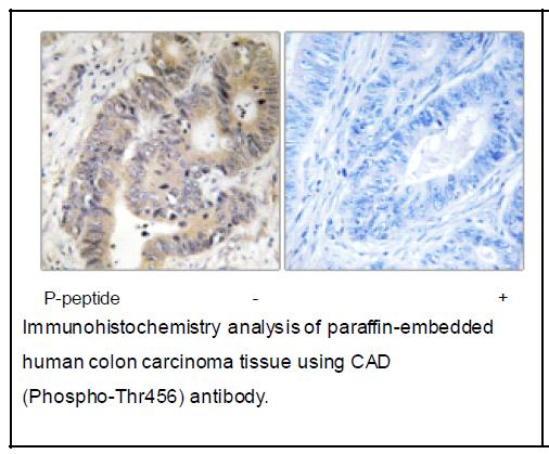 CAD (Phospho-Thr456) Antibody (OAEC04055) in Human colon carcinoma cells using Immunohistochemistry
