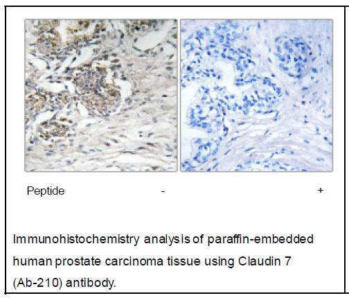 Claudin 7 (Ab-210) Antibody (OAEC04068) in Human prostate carcinoma cells using Immunohistochemistry