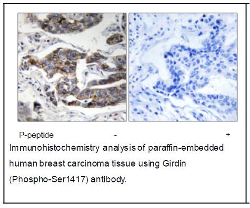 Girdin (Phospho-Ser1417) Antibody (OAEC04087) in Human breast carcinoma cells using Immunohistochemistry
