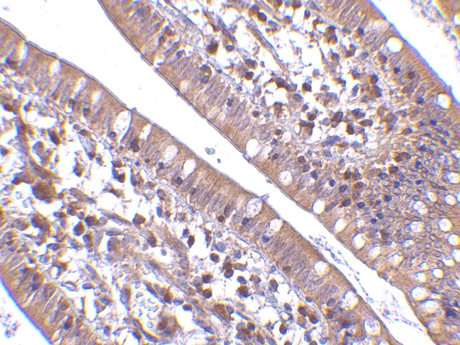 CIDE-B Antibody (OAPB00117) in humanmall intestine cells using Immunohistochemistry