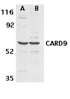 CARD9 Antibody (OAPB00160) in human MDA-MB-361 and PC-3 cells using Western Blot