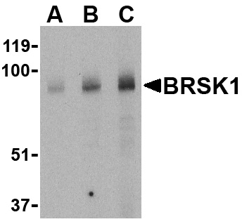 BRSK1 Antibody (OAPB00509) in Human brain cells using Western Blot