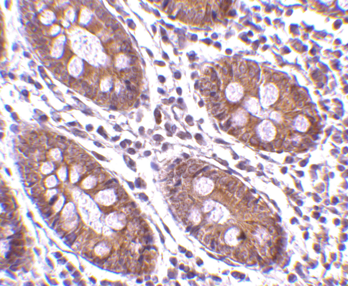 CDKN2A Antibody (OAPB00526) in human colon cells using Immunohistochemistry