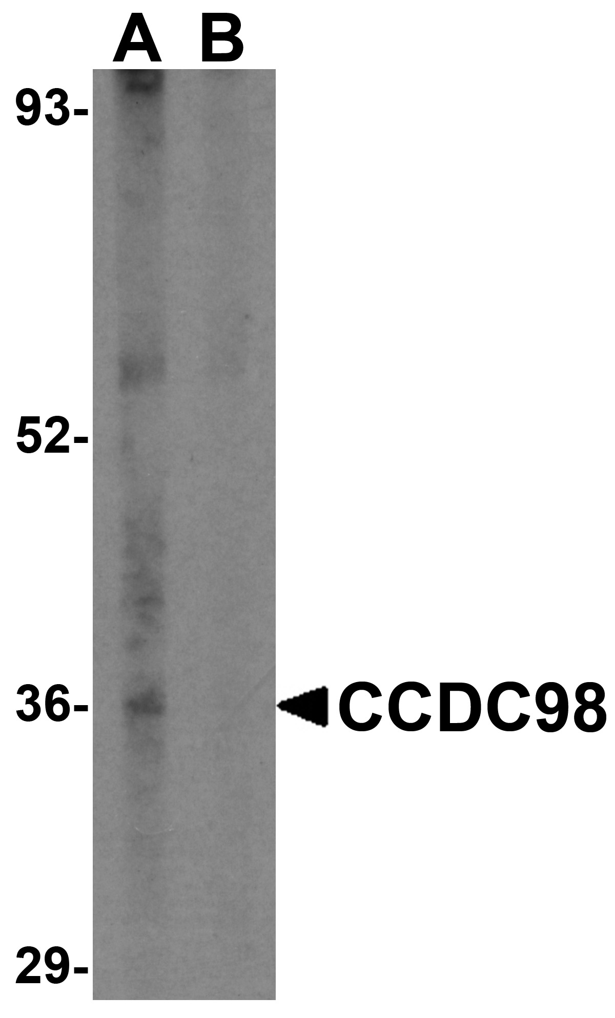 CCDC98 Antibody (OAPB00568) in the absence and presence of blocking peptide cells using Western Blot