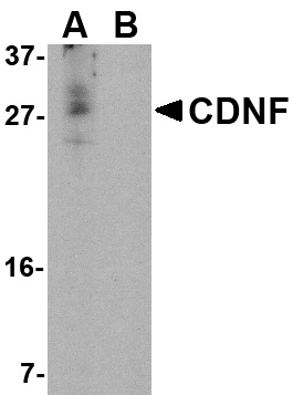 CDNF Antibody (OAPB00579) in the absence and the presence of blocking peptide cells using Western Blot