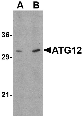 ATG12 Antibody (OAPB00613) in Human brain cells using Western Blot
