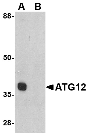 ATG12 Antibody (OAPB00614) in Mouse Heart cells using Western Blot