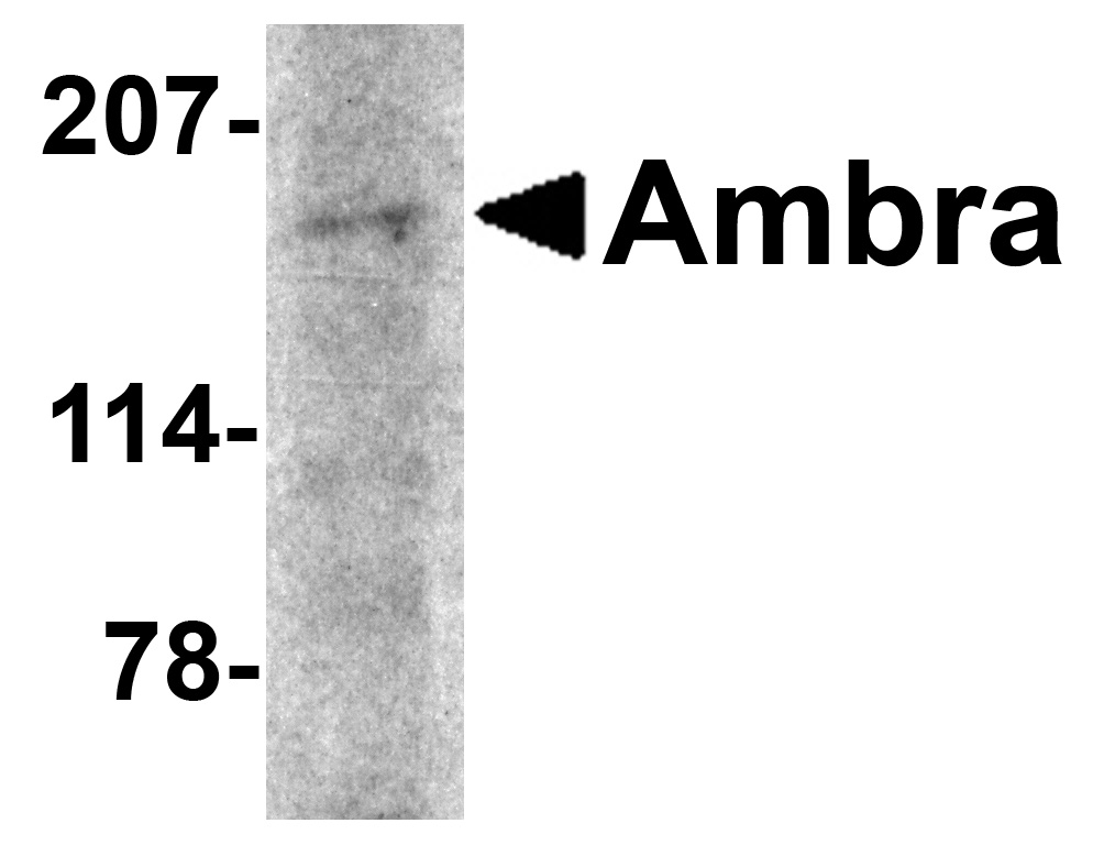 Ambra1 Antibody (OAPB00663) in rat brain cells using Western Blot