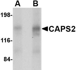 CAPS2 Antibody (OAPB00666) in Human brain cells using Western Blot