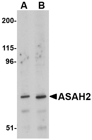 ASAH2 Antibody (OAPB00727) in 293 cells using Western Blot