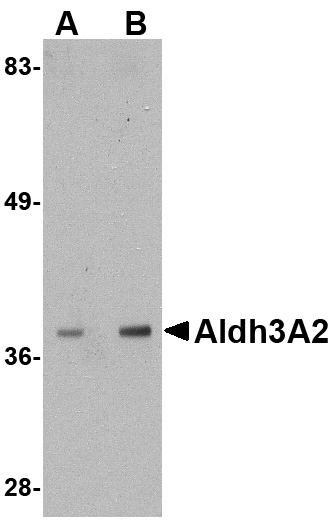 Aldh3A2 Antibody (OAPB00746) in Mouse Liver cells using Western Blot