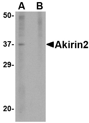 Akirin2 Antibody (OAPB00753) in mouse brain cells using Western Blot