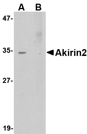 Akirin2 Antibody (OAPB00754) in Human brain cells using Western Blot