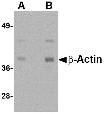 Beta-actin Antibody (OAPB00827) in Hela cells using Western Blot
