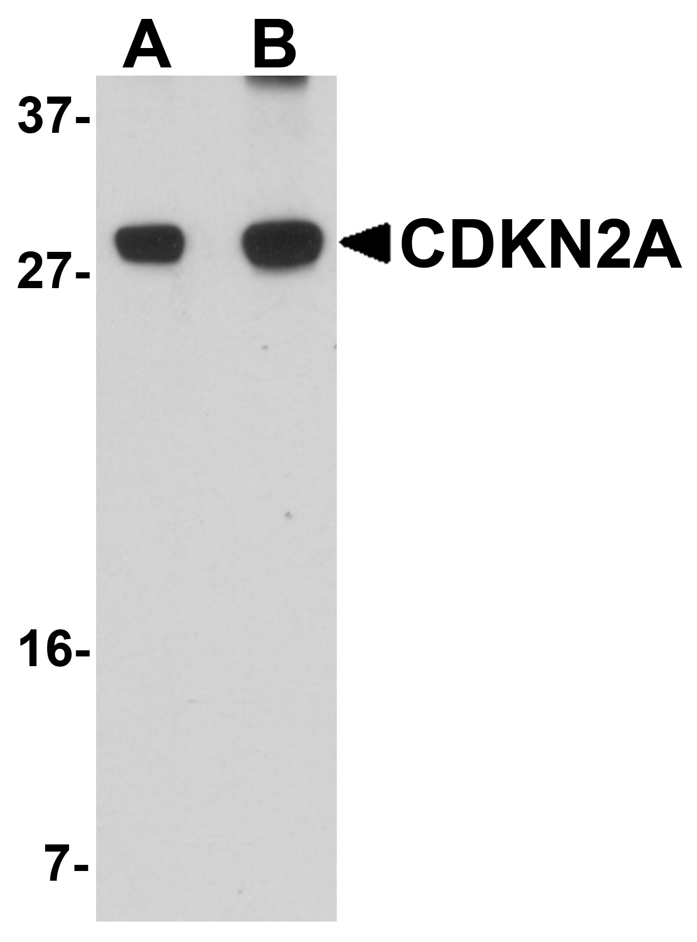 CDKN2A Antibody (OAPB00835) in C2C12 cells using Western Blot
