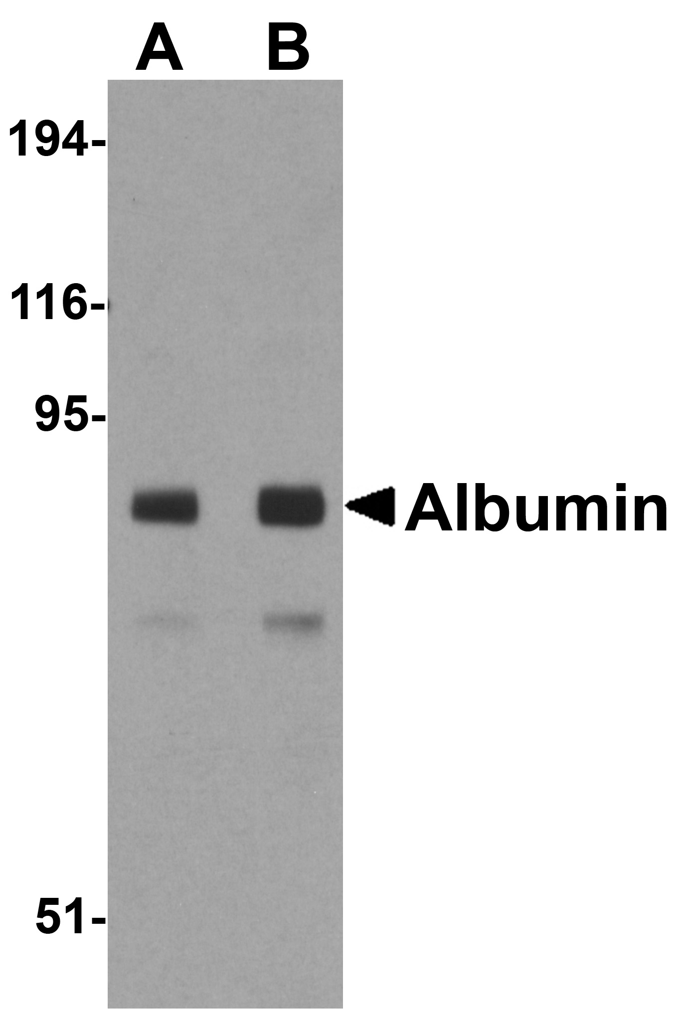 Albumin Antibody (OAPB00884) in Mouse Liver cells using Western Blot