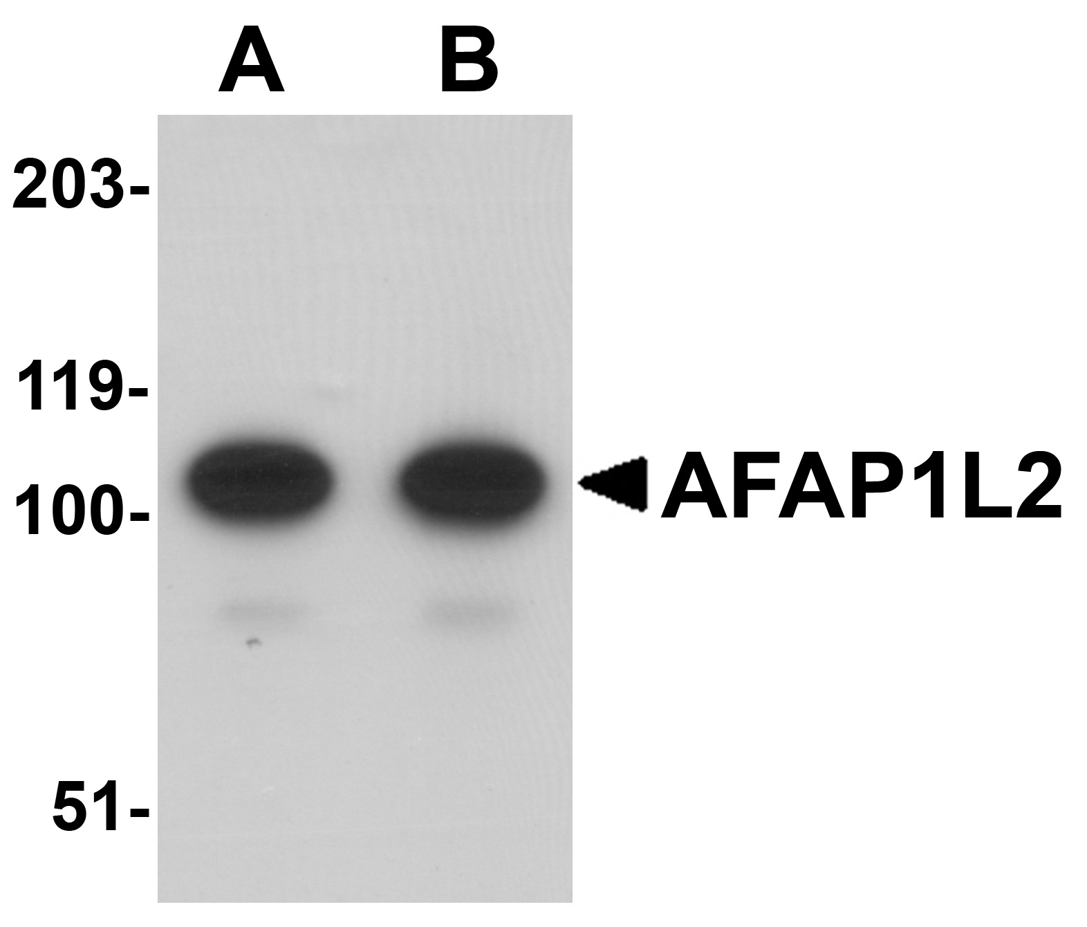 AFAP1L2 Antibody (OAPB00906) in Mouse Liver cells using Western Blot