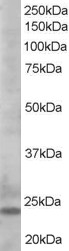 BCL2L11 antibody - C-terminal region (OASA06056) in K562 cells using Western Blot