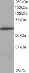 CORO1A antibody - C-terminal region (OASA06120) in Jurkat cells using Western Blot