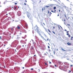 Casp12 Antibody (OASA07120) in human heart cells using Immunohistochemistry