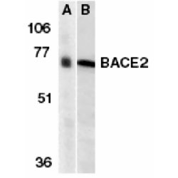 BACE2 Antibody (OASA07444) in human and mouse heart cells using Western Blot