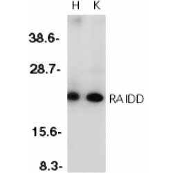 CRADD Antibody (OASA08137) in HeLa (H) or K562 (K) cells using Western Blot