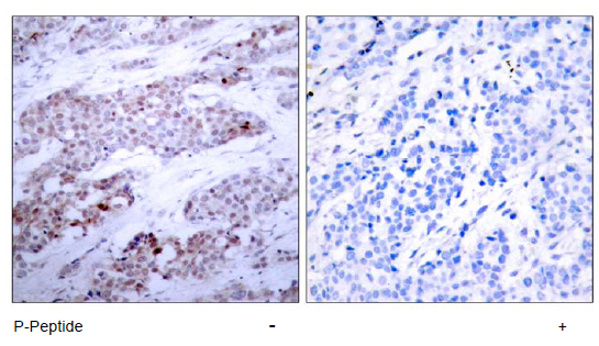 ATF4 Antibody (OASC00035) in human brain carcinoma cells using Immunohistochemistry
