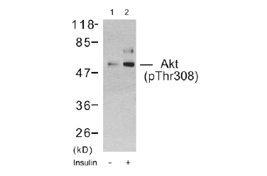 AKT1 Antibody (OASC00037) in 293T cells using Western Blot