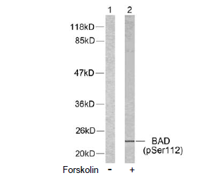 Bad Antibody (OASC00040) in 293T cells using Western Blot