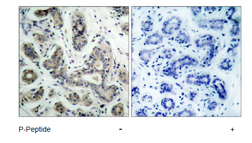Bad Antibody (OASC00041) in human brain carcinoma cells using Immunohistochemistry