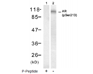 AR Antibody (OASC00068) in DU145 cells using Western Blot