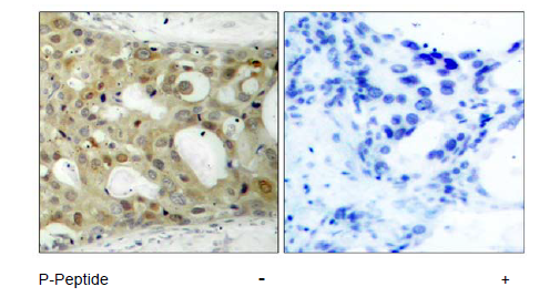 AR Antibody (OASC00069) in human brain carcinoma cells using Immunohistochemistry